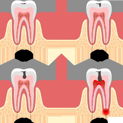 Endodoncia - Clínica dental en Sevilla