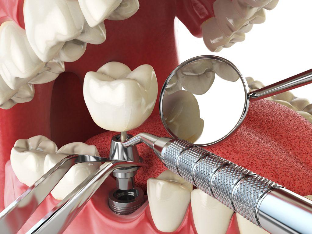Implantología - Clínica dental en Sevilla