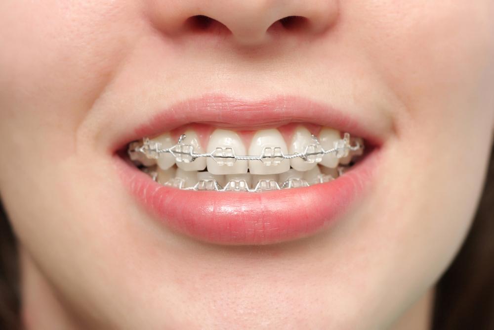 Ortodoncia - Clínica dental en Sevilla