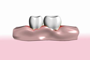 Periodoncia - Clínica dental en Sevilla