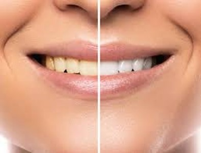 Claves para conseguir un buen blanqueamiento dental - Clínica dental en Sevilla