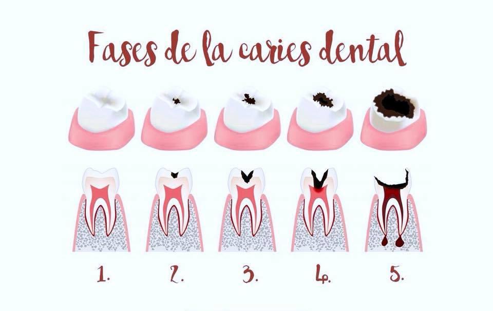 Fases de la caries. ¿Porqué no siempre duele? - Clínica dental en Sevilla