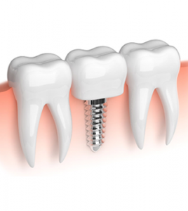 Implantes dentales: que son y cuántos tipos existen. - Clínica dental en Sevilla