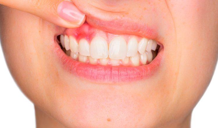 ¿Enfermedad periodontal? - Clínica dental en Sevilla
